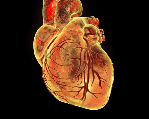 Heart with coronary blood vessels, computer illustration.