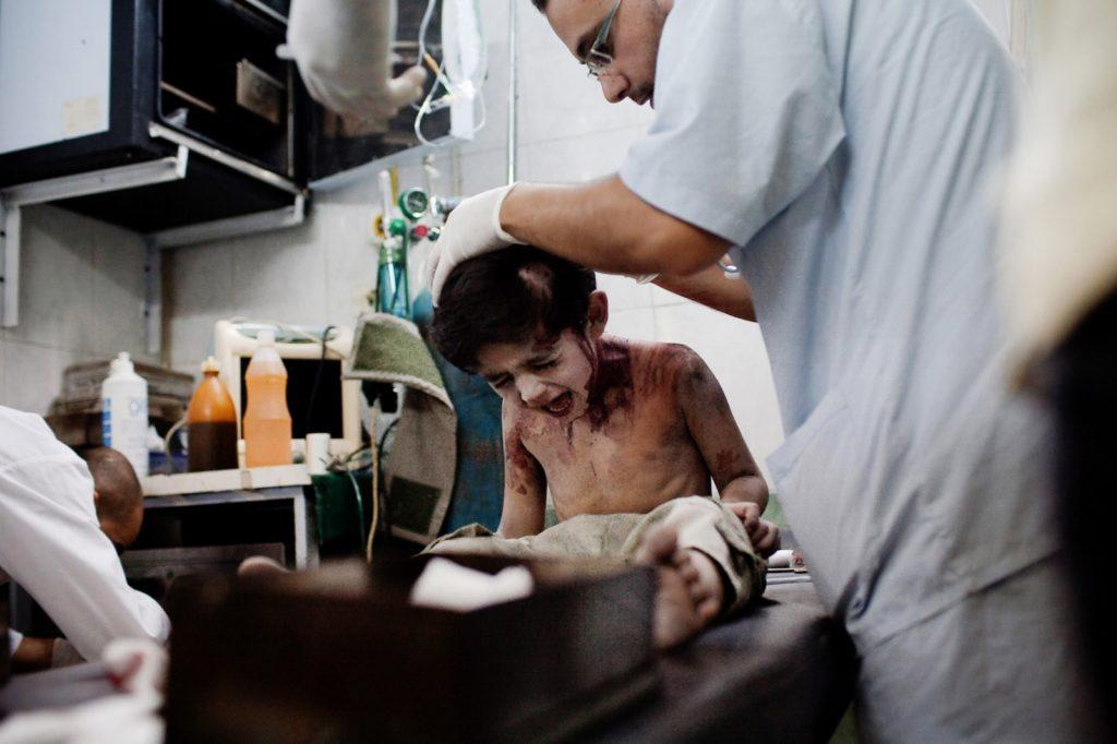 阿勒頗的小男孩因空襲頭部受傷,被醫生救治。(Nicole Tung)