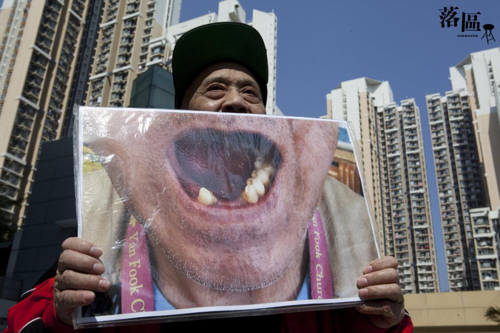 曾海鵬說人口老化,長者牙患人數會陸續上升。他幾近沒有牙齒,為了其他街坊,他願意說出無牙之苦。