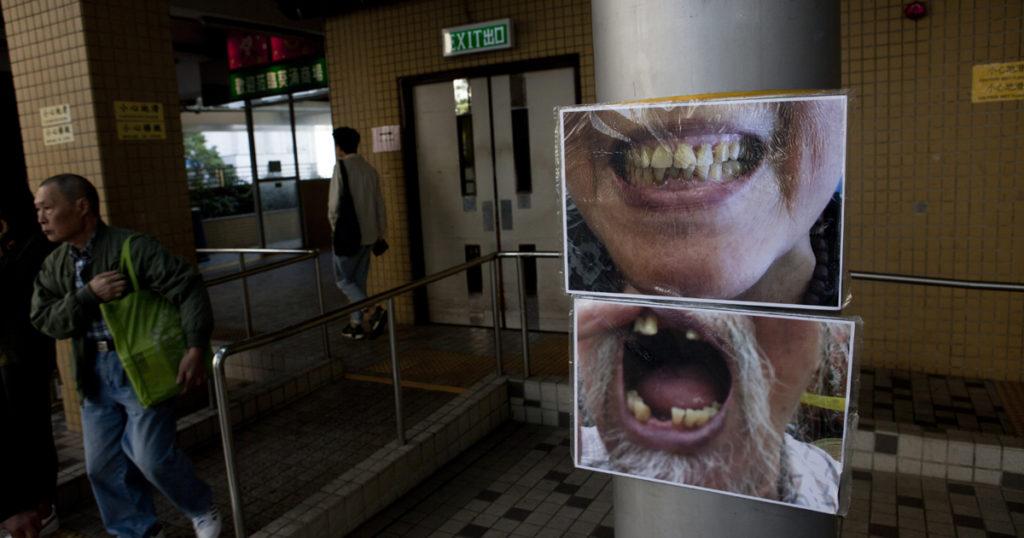牙痛苦了基層長者,很多地區沒有公立牙科診所,團體聯署要求增設診所。