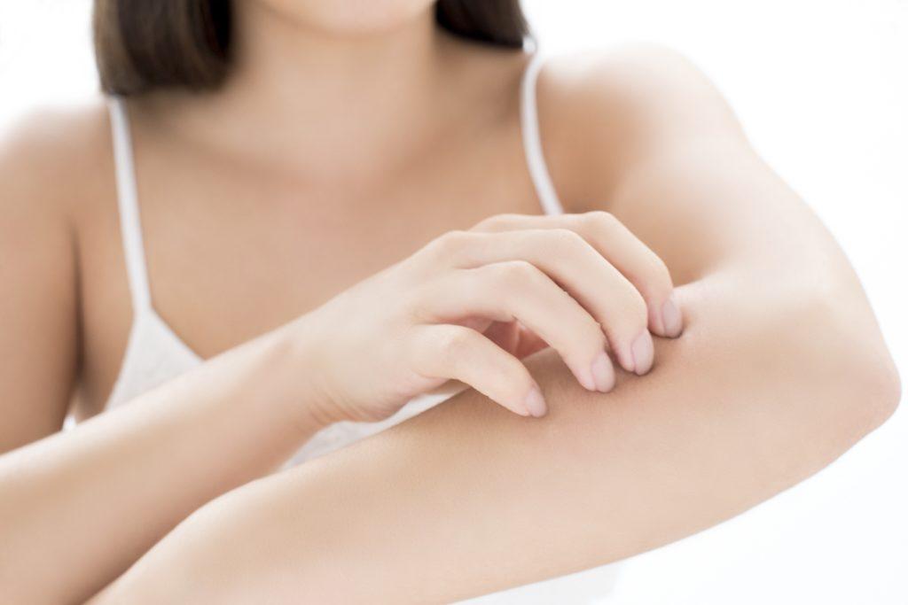 濕疹患者是身體先天缺乏自行製造保護性油脂的機能,而油質潤膚霜是有修護皮膚功能,但很多人認為油性潤膚霜會阻塞毛孔而拒絕塗抹。