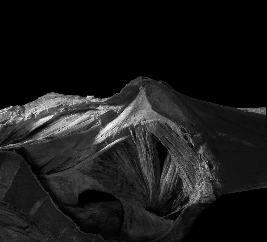 盆腔肌肉 muscles of pelvic cavity