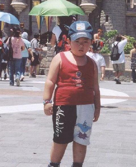李永光小時因為遺傳病影響下,不能控制食慾導致過重,如果沒有接受物理治療的運動訓練有機會演變成癡肥。