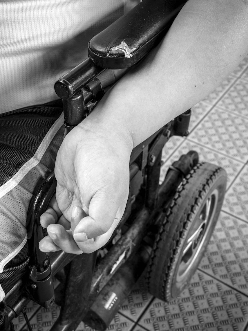 左手因為難以控制張力,容易甩出扶手外,有機會導致肩膊甩骹。出街時,Roger總會用斜揹袋遮住左手。
