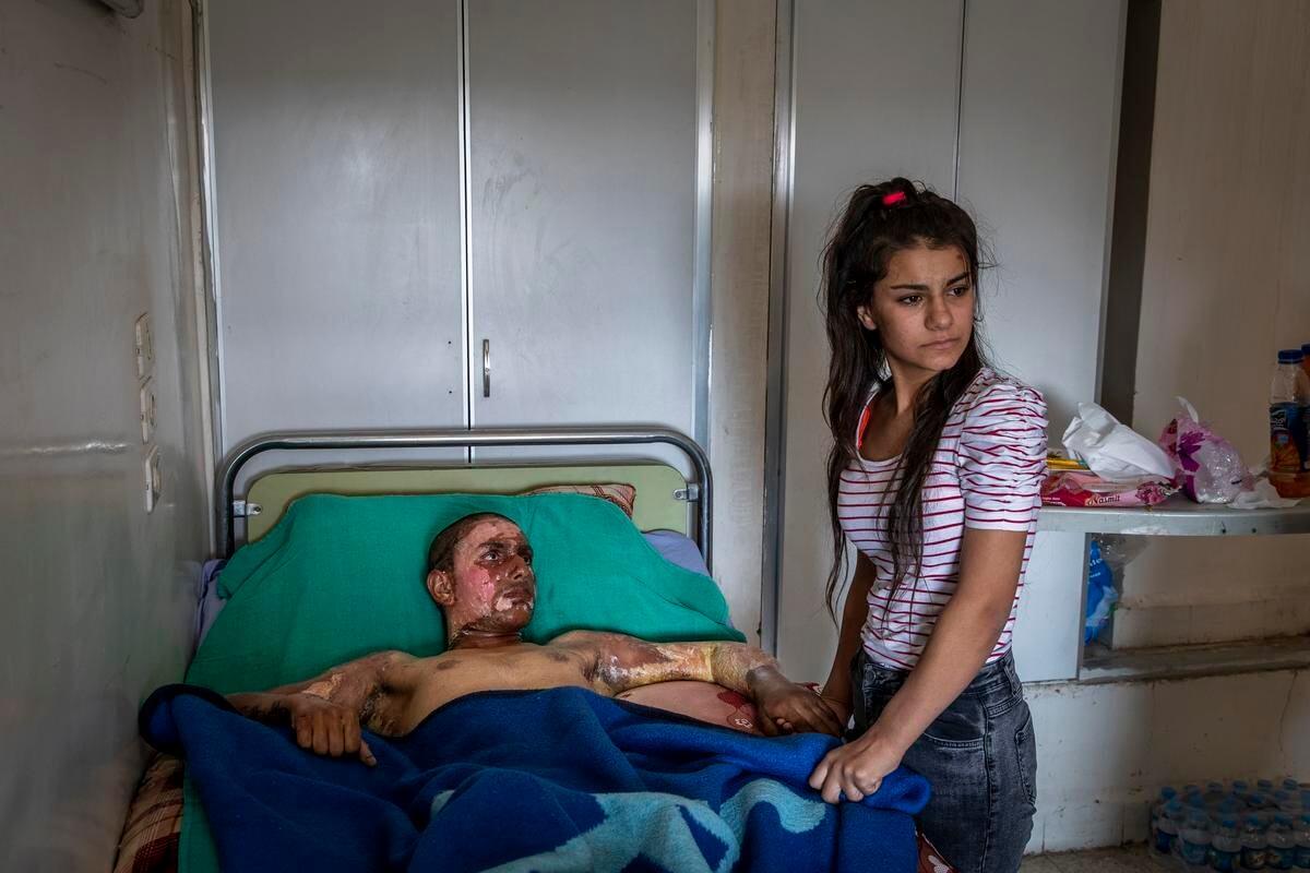 敘利亞一名嚴重燒傷的「敘利亞民主力量」(SDF)的十八歲戰士Ahmed Ibrahim身處醫院,其女友前來探望。(攝影:Ivor Prickett/紐約時報)