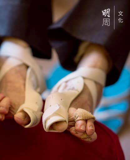 腳趾互相擠壓重疊,晚上睡覺要戴着拇趾外翻矯正器和腳趾套。