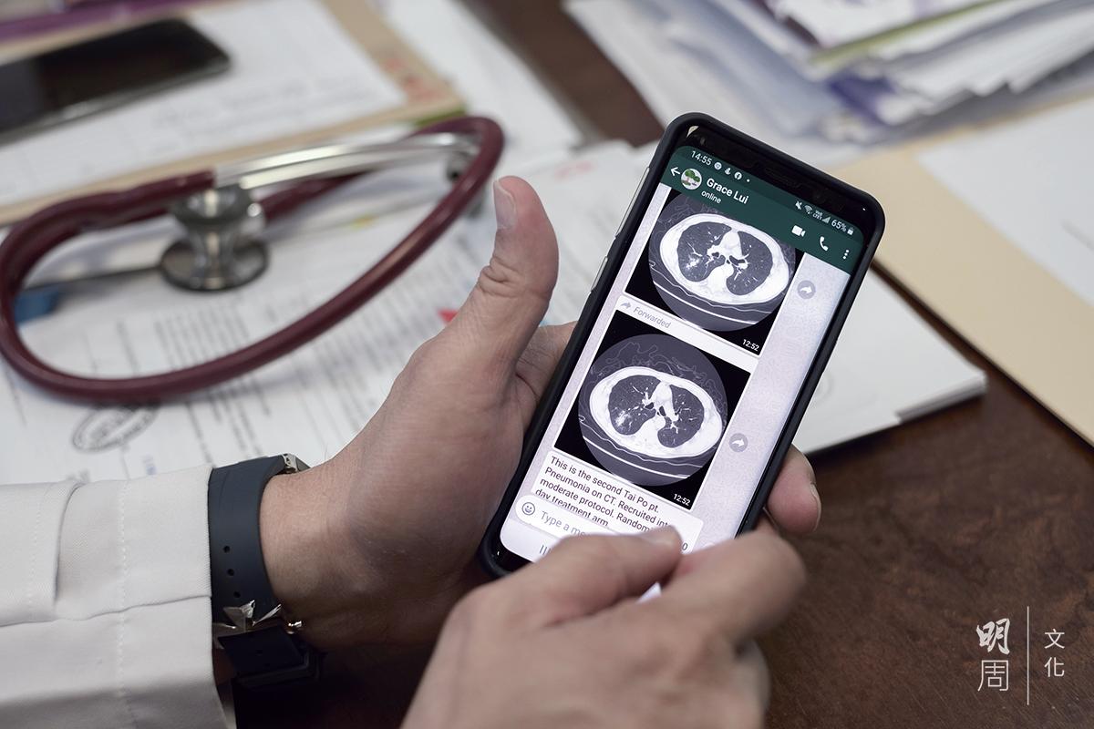 每當有新個案入院,許樹昌教授便會收到同事傳來患者的肺片,請教他處理方法。