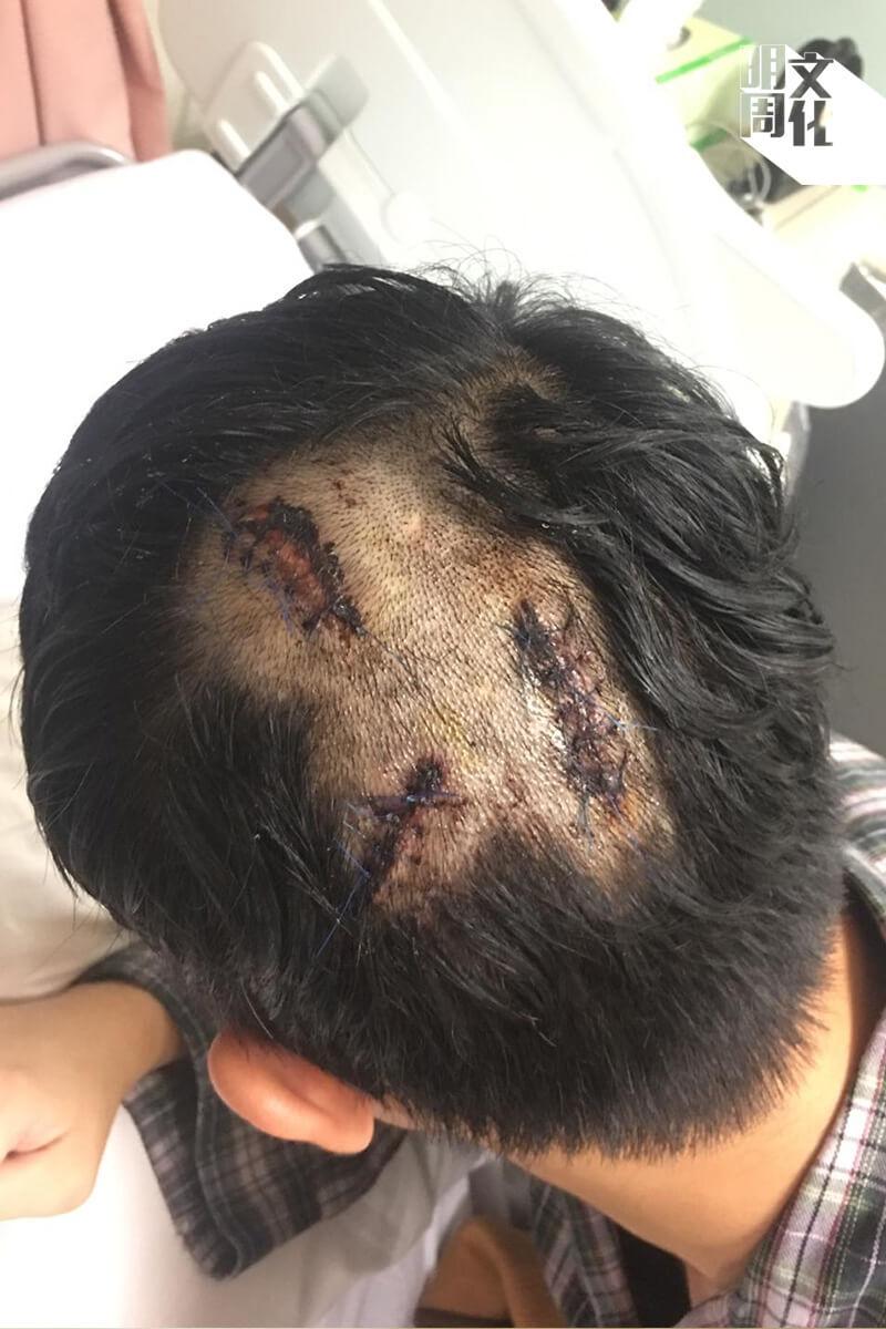 831在車廂被疑似警員毆打,他的後腦中了三棍,縫了十四針。