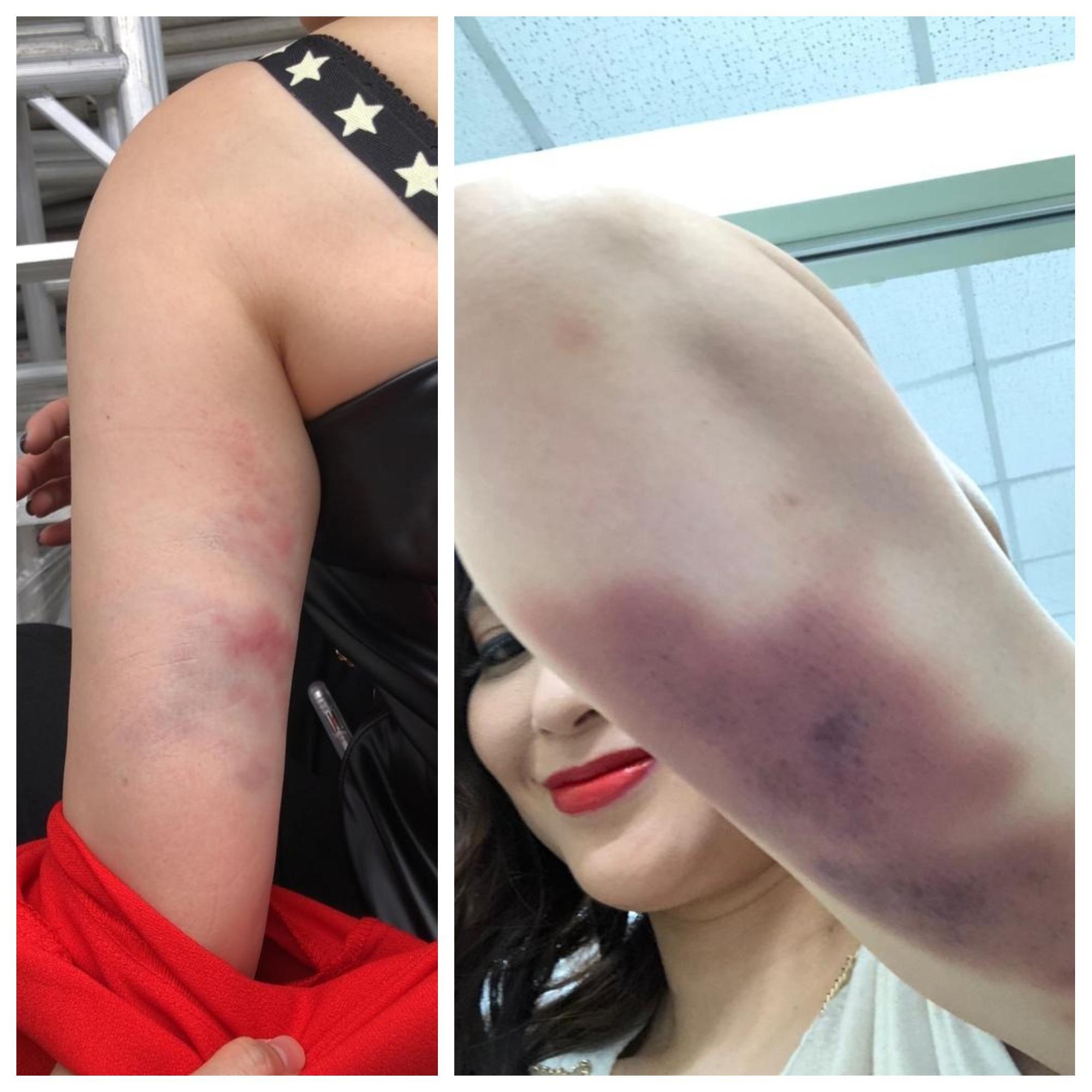 樊亦敏亦不好受,手臂被威也繩弄瘀了一大遍。