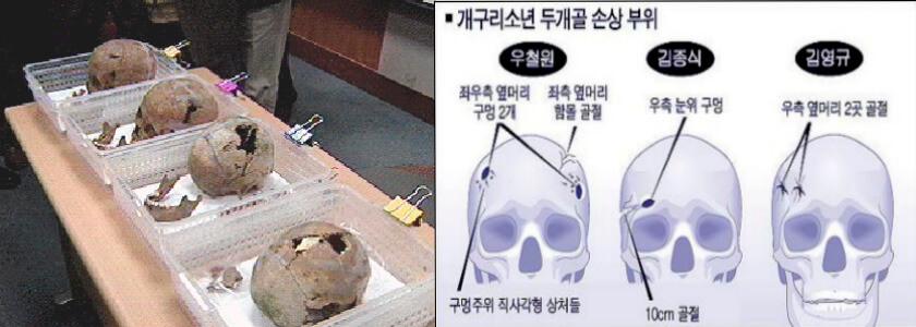 五名學生的頭顱均有受外物襲擊的痕迹