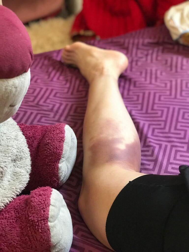 跟對手埋身肉搏,拳腳無眼,致傷痕纍纍,是當打女的辛酸。