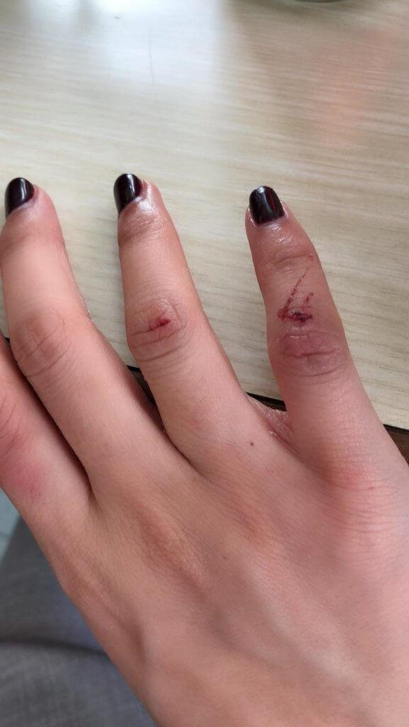 龔嘉欣拍劇致尾指斷筋,現在仍有後遺症,右手無名指及尾指無法合起來,尾指至今都感到乏力。