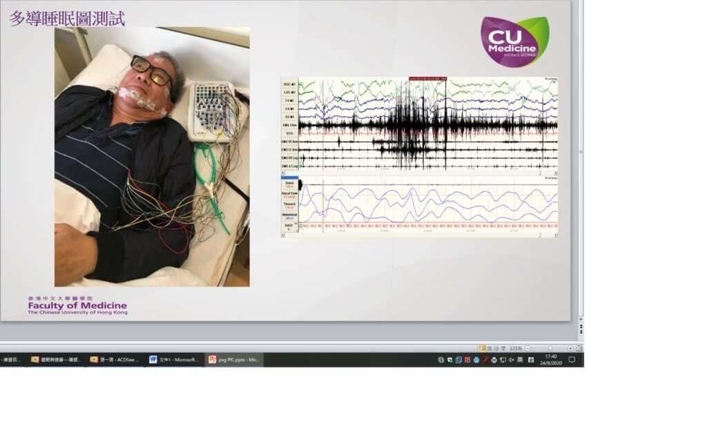 透過睡眠檢查和儀器監測,才能得知是否患睡眠窒息症。