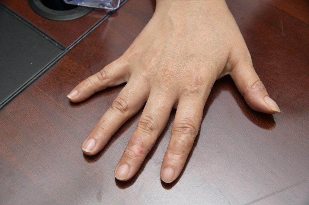 劉雅麗因勤洗手令雙手濕疹情況變得更嚴重