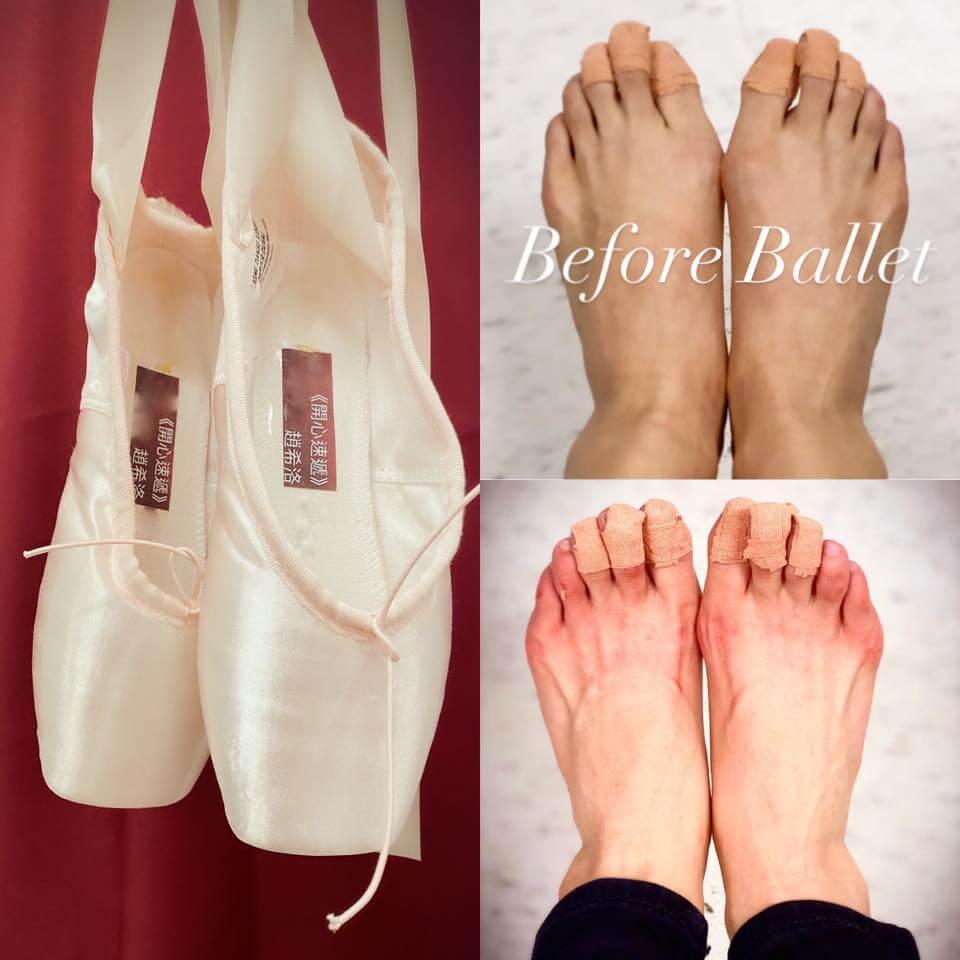 趙希洛在《愛‧回家之開心速遞》飾演無知May,為拍攝劇中的跳芭蕾舞戲分,搞到雙腳紅腫。