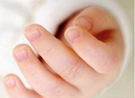 小朋友很容易被自己的指甲划傷