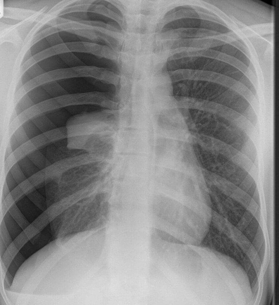 X光片顯示氣胸患者的肺部有氣泡
