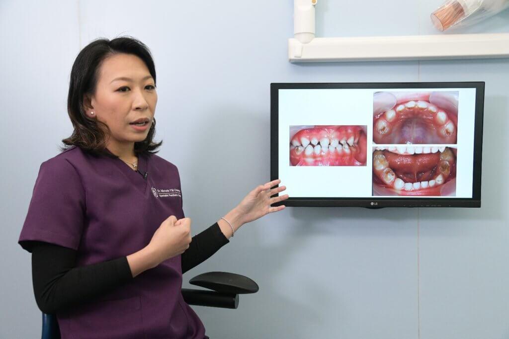 幼齒嚴重蛀牙對恆齒會造成影響