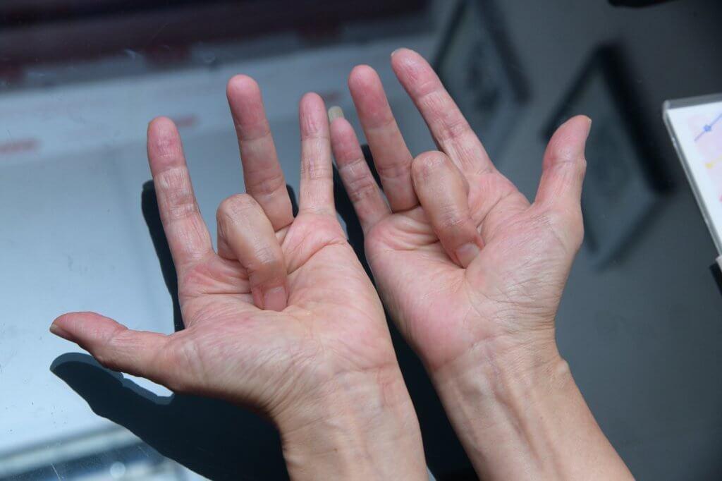 雙手握拳中指在掌手位置就是勞宮穴