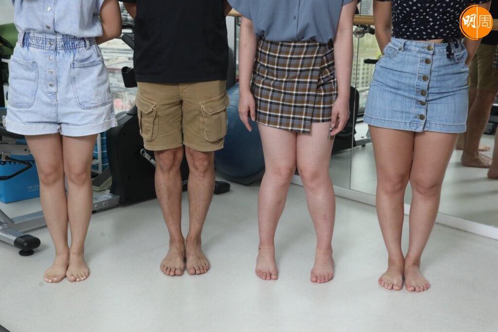 來看看,你是哪一種腿形,(左一)雙腿大腿、膝蓋、腳踝全部合攏的腿形最漂亮,(左二)膝蓋、腳踝不能合攏是O形腿,(左三)膝蓋合攏但腳踝分開是X形腿,(左四)膝蓋合攏但大腿、腳踝不能合攏是XO形。